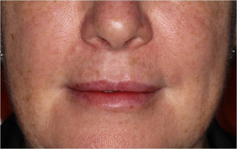 Lips after filler